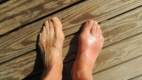 """Gout was once known as the """"disease of kings"""" because of its links to excessive food and alcohol consumption. These days, unhealthy lifestyles are behind an increase in gout in developed countries."""