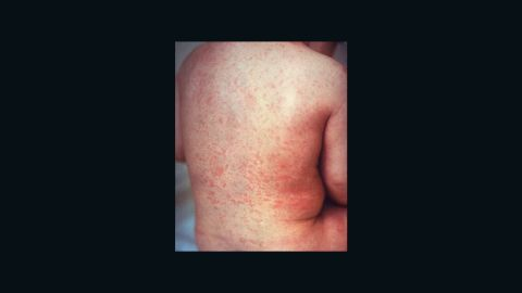 """In April 2015, the Americas became the first region to eliminate rubella; the <a href=""""https://www.cdc.gov/rubella/about/in-the-us.html"""" target=""""_blank"""" target=""""_blank"""">Centers for Disease Control and Prevention says</a> there are fewer than 10 cases each year.<strong> </strong>But globally, about <a href=""""https://measlesrubellainitiative.org/resources/advocacy-tools/2017-fact-sheet/"""" target=""""_blank"""" target=""""_blank"""">110,000 babies</a> are born with <a href=""""http://www.cnn.com/2016/09/08/health/rubella-house-zika-babies-future/index.html"""">congenital rubella syndrome</a> every year."""