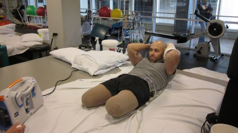 Brian Mast undergoing therapy.
