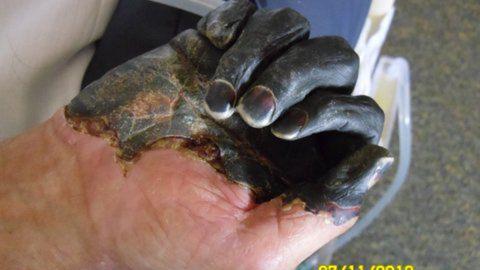 Paul Gaylord's hand as it developed gangrene.