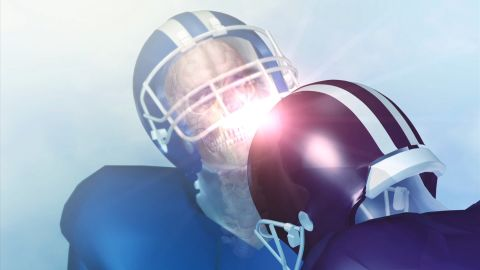 ####2011-11-29 00:00:00 Please encode football concussion.mov from to_pinnacle -> Medical##