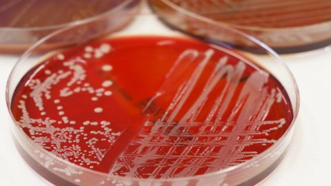 Some bacteria in hospitals are resistant to even the most powerful antibiotics. Seventy-five thousand people die every year from infections that patients catch at hospitals. It may be uncomfortable to ask, but make sure doctors and nurses wash their hands before they touch you, even if they're wearing gloves.