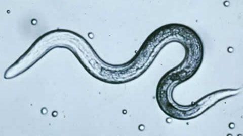 Toxocariasis infections, caused by the toxocara roundworm, can bring about serious health problems.