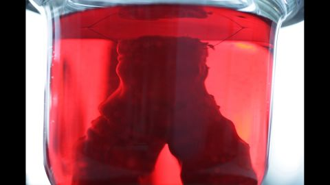 A lab-grown trachea, or windpipe, inside a bioreactor.