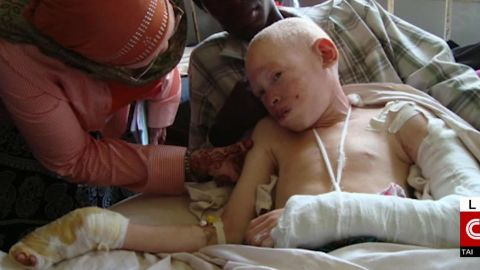 tanzania albino teen los angeles bones sidner dnt nr_00004106.jpg