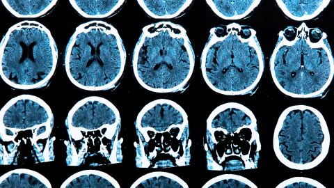 A 2012 study gave credence to the theory that sugary foods and carbohydrates harm brain health.