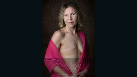 Rebecca lost her right breast to cancer. She chose not to have breast reconstruction at this time.