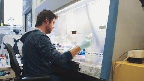 orig pioneers epibone human bones from fat_00005404.jpg