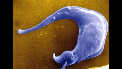 <strong>Chagas disease, aka T. cruzi: </strong>This nasty disease comes from a bug called a triatomine that's infected with the Trypanosoma cruzi parasite. The CDC estimates there are at least 300,000 people living with the disease in the U.S. right now, but they may not know it. It unusually takes years of chronic infection before heart disease, heart failure and gastrointestinal problems begin.<br />