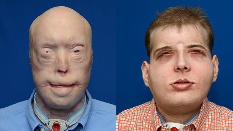 """Patrick Hardison, 41, had <a href=""""http://www.cnn.com/2015/11/15/health/face-transplant-firefighter/index.html"""">face transplant surgery</a> in August 2015. The surgery was performed by a plastic surgeon from New York University Langone Medical Center. Hardison, a volunteer firefighter, was injured 15 years ago."""