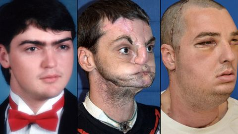 American Richard Norris: left, in high school in 1993; center, after suffering a gunshot injury; right, after face transplant surgery.