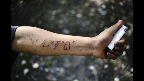 "A man named Balta, who King said belonged to the street gang ""Los Pokos Lokos,"" engraved his name into his own arm."