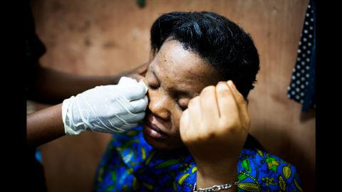 Ritah, an employee of a Mama Lususu salon in Kampala, Uganda, has her skin worked on by her colleagues. Ritah has extremely bleached skin with many infections, according to German photographer Anne Ackermann.