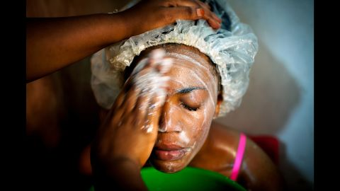 Susan visits Mama Lususu's during her lunch break to have her skin treated. She said she doesn't bleach her skin.