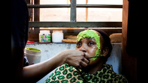 Aisha receives a face mask at the salon. For two months, she had been using a brightening product at home. It caused acne and inflammations in the face.