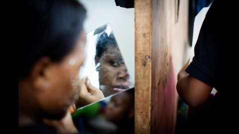 Ritah treats her pimples while looking into a mirror.