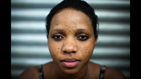 Sharifa came to Mama Lususu because of pimples, a common side effect of at-home bleaching.