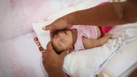 Alice Vitoria Gomes Bezerra, a 3-month-old baby with microcephaly, is placed in her crib by her father Wednesday, January 27, in Recife.
