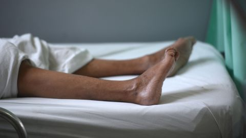 A patient suffering from Guillain-Barre syndrome recovers at a hospital in San Salvador, El Salvador, on January 27. Researchers are looking into a possible link between Zika and Guillain-Barre, a rare disorder that causes the body's immune system to attack its nerves.