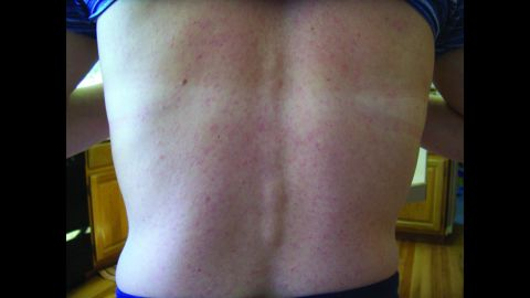 The rash on Chilson Foy's back, documented as part of the research.
