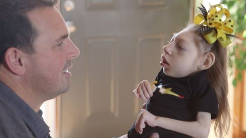 Scott Hartley holds his daughter Lola, who has microcephaly.