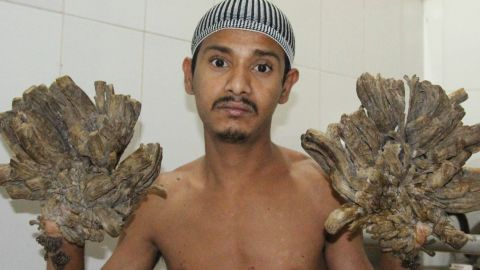 """Abul Bajandra, Bangladesh's so-called """"Tree Man"""" is suffering from an extremely rare genetic condition known as Epidermodysplasia Verruciformis."""