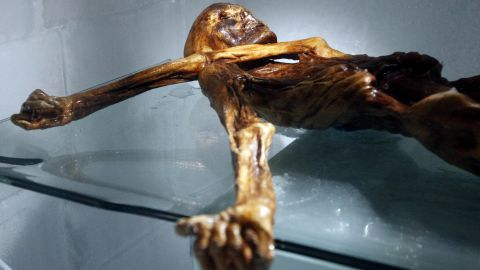 Otzi remains in the same position in which he was found.