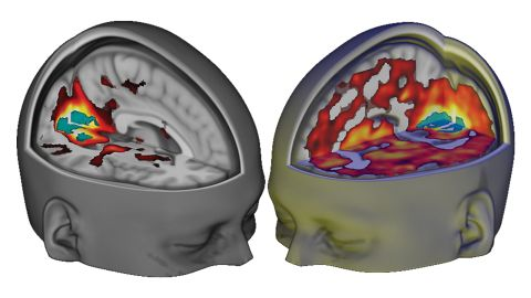 """Using brain scanning and other techniques, researchers at <a href=""""http://www.imperial.ac.uk/"""" target=""""_blank"""" target=""""_blank"""">Imperial College London</a> were recently able to show what happens when someone takes LSD."""