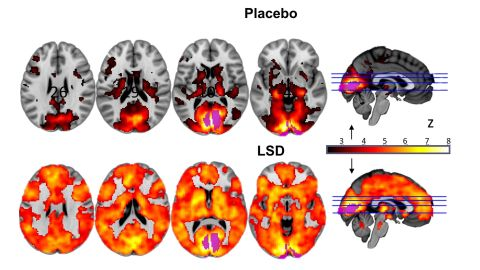 Participants' brains lit up with activity after taking the drug. Researchers hope the findings may help towards developing treatments for depression or addiction.