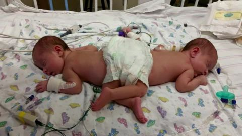 conjoined twins seperated pkg_00003316.jpg