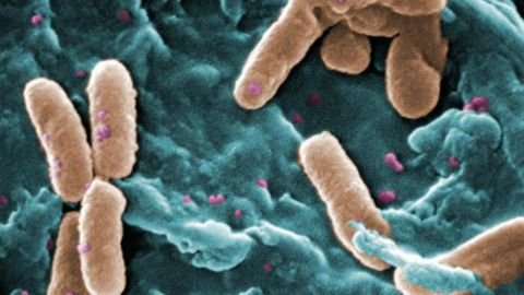 Pseudomonas aeruginosa is another common hospital-acquired infection with resistance to the main drug used against it, carbapenem.