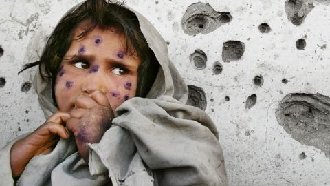 Mahbooba, 7, stands against a bullet-ridden wall waiting to be seen at a health clinic. She suffers from a disfiguring skin disease called Leishmaniasis which is a parasitical bacterial infection transmitted from tiny sand fleas. March 1, 2002