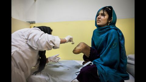Bibi Adela, 15, is treated at a Red Cross facility in Kabul in November 2009. She lost her leg after a rocket attack that killed her sister and mother.