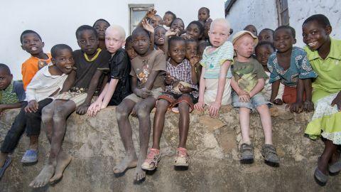 Image of albino children in the community.