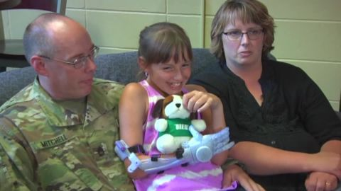 9 year old gets Frozen prosthetic arm_00001906.jpg