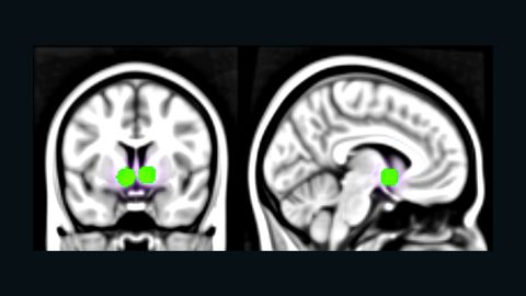 """Being appreciated on social media, through """"likes,"""" was seen in brain scans to activate the reward centers of the brain, pictured."""