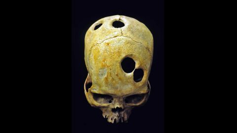 An ancient surgeon in Peru likely used a sharp tool to carefully groove the perfect circles in this Incan skull. Healed bone around the edge of the holes indicates the patient was alive during the surgery and likely survived. Scholars can't explain the purpose behind the mysterious, multiple openings.