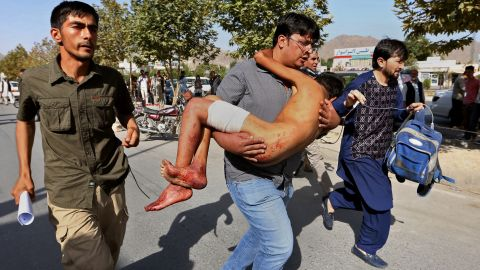 An injured boy is carried to a hospital.
