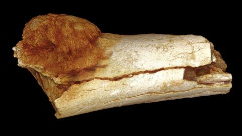 A  rendered image of an ancient foot bone fragment, showing a cancerous growth extending beyond the bone's surface.