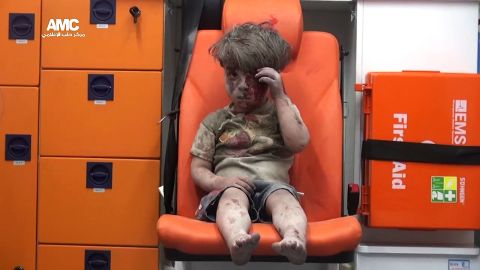 Omran silently wipes blood from his head in one of the last images we see in the video. He has since been released from the hospital. The doctor who treated him said his injury was light compared with the others wounded in the bombing.