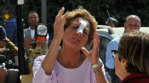 This woman in Amatrice was wounded during the earthquake.