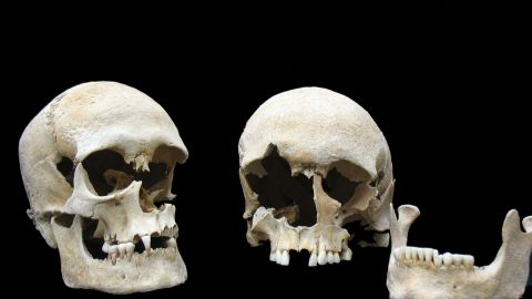 Skulls of both plague victims, a woman (on right) and man (on left), were buried together in one grave at the Altenerding cemetery in rural southern Germany. The Yersinia pestis genome was extracted from the woman.