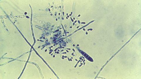 """While deadly fungal infections kill over a million people every year, superficial ones such as <a href=""""http://www.cdc.gov/fungal/diseases/ringworm/"""" target=""""_blank"""" target=""""_blank"""">ringworm</a> (pictured), athlete's foot and dandruff can affect 1-2 billion people annually, as well as put stress on health care systems."""