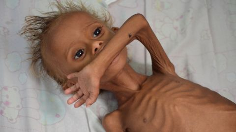 A malnourished boy lies on a bed at a hospital in the Red Sea port city of Houdieda, Yemen, in  September 2016.