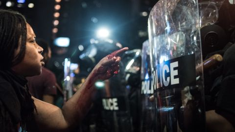 With blood covering her hand and arm, a woman points at a police officer on September 21 in Charlotte, North Carolina. The North Carolina governor has declared a state of emergency in the city of Charlotte after clashes during protests in the city in response to the fatal shooting by police officers of 43-year-old Keith Lamont Scott at an apartment complex near UNC Charlotte.