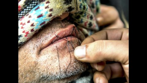 A man sews the lips of an Iranian migrant at the camp on Thursday, March 3. Journalists said at least nine Iranians stitched their mouths shut and went on a hunger strike to protest the camp's dismantling.