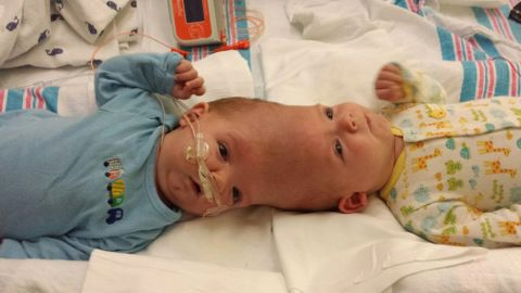 """Anias and Jadon McDonald were born conjoined at the head on September 9, 2015, via an unscheduled C-section. """"They were normal little boys, like any other two little babies you would see,"""" said their father Christian McDonald, """"except for being conjoined."""""""
