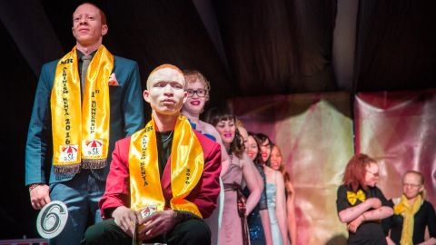 The Mr and Miss Albinism beauty pageant was organized by the Albinism Society of Kenya.