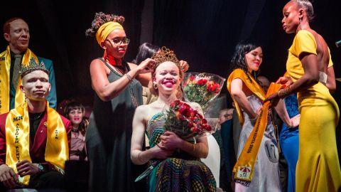 Loise Lihanda was crowned Miss Albinism.
