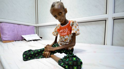 Severely malnourished, Saida Ahmad Baghili, 18, sits on a bed at a hospital in Hodeida, Yemen.